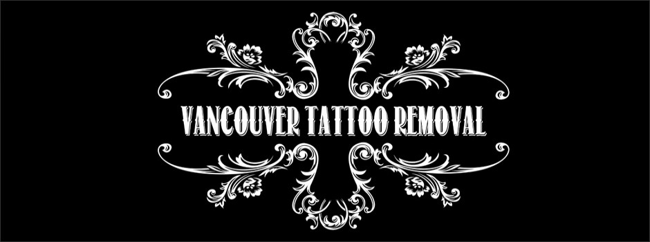 vancouver-tattoo-removal-gastown-tattoo